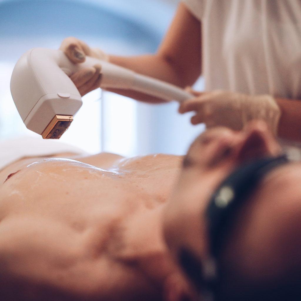 Lasergerät Behandlung Mann Brust@collectedbykatja.com  1024x1024 - Was Sie über Haarentfernung wissen sollten
